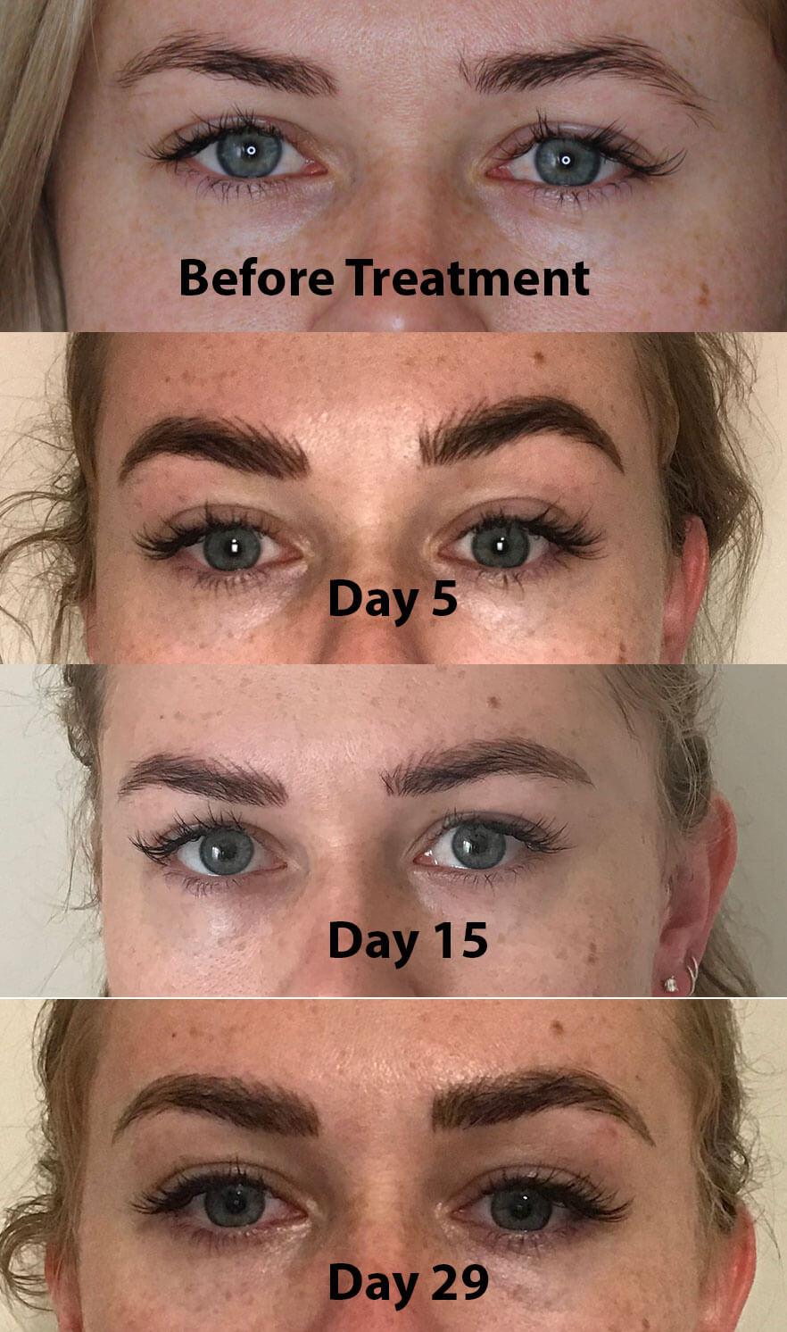 Microblading Progress Photographs